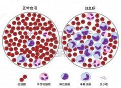 白血病早期症状有哪些?